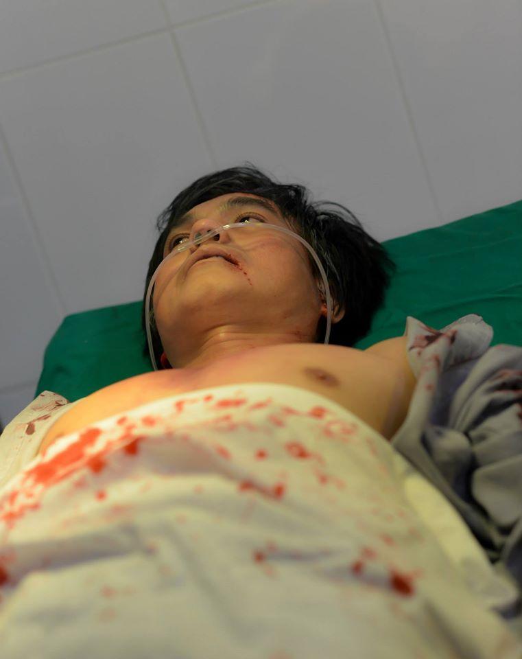 Vì phim mới hoài lâm phải bị đánh phải băng đầu nhập viện - 12