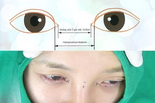 Cận cảnh phương pháp kích mắt to bằng phẫu thuật khóe - 2