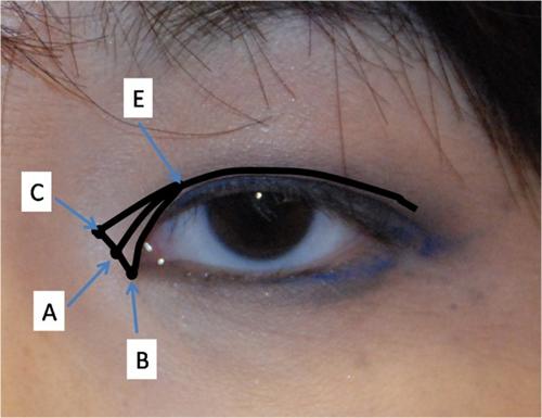 Cận cảnh phương pháp kích mắt to bằng phẫu thuật khóe - 3