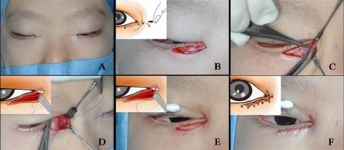 Cận cảnh phương pháp kích mắt to bằng phẫu thuật khóe - 4