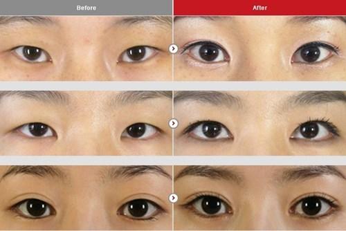 Cận cảnh phương pháp kích mắt to bằng phẫu thuật khóe - 5