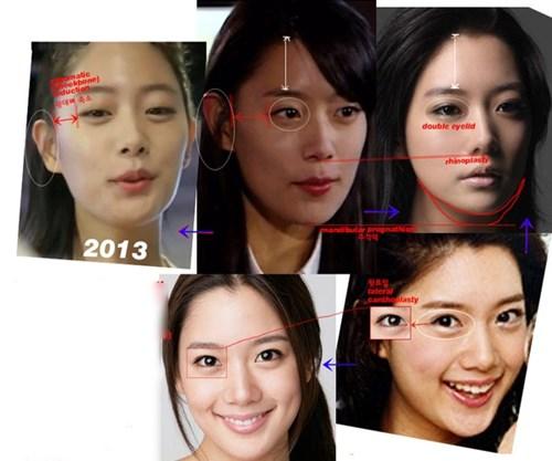 Cận cảnh phương pháp kích mắt to bằng phẫu thuật khóe - 6