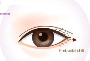 Cận cảnh phương pháp kích mắt to bằng phẫu thuật khóe - 10