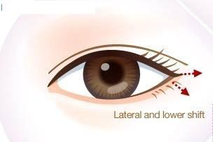 Cận cảnh phương pháp kích mắt to bằng phẫu thuật khóe - 11