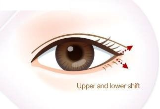Cận cảnh phương pháp kích mắt to bằng phẫu thuật khóe - 12