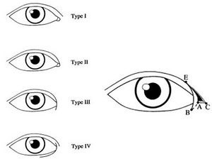 Cận cảnh phương pháp kích mắt to bằng phẫu thuật khóe - 1
