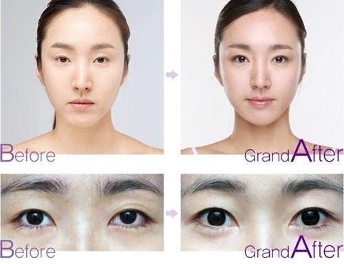 Cận cảnh phương pháp kích mắt to bằng phẫu thuật khóe - 13