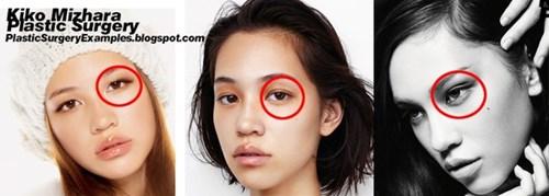 Cận cảnh phương pháp kích mắt to bằng phẫu thuật khóe - 14