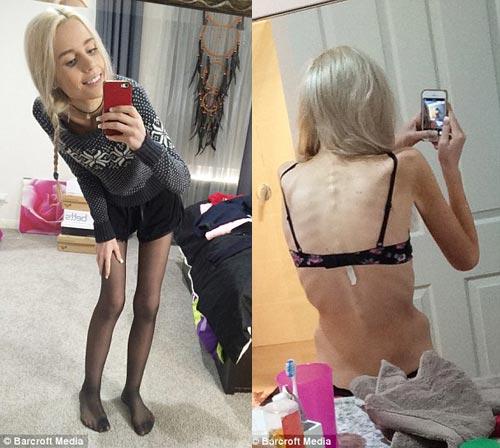 Cô gái 19 tuổi suýt chết vì nhịn ăn giảm cân - 2
