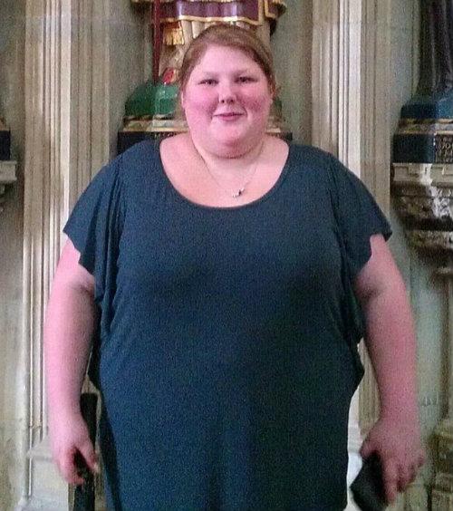 Hành trình cân nặng bất thường của cô gái béo phì - 10