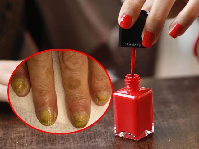 Dùng sơn móng kém chất lượng có thể gây rối loạn sinh sản ung thư rối loạn nội tiết - 1