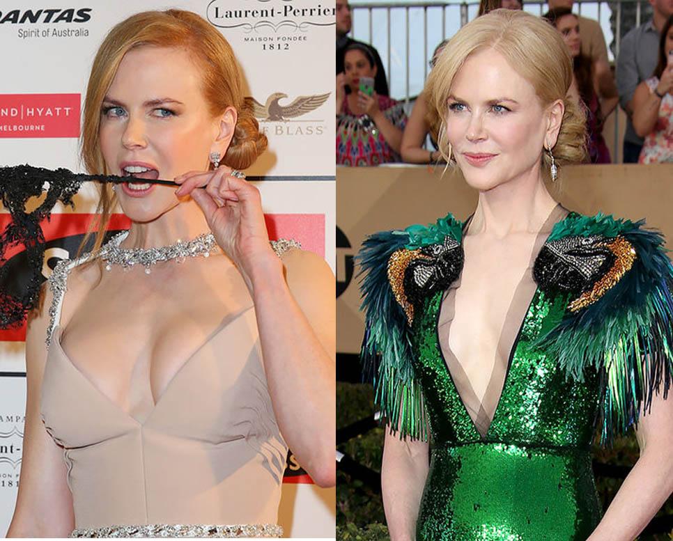 Qúa sợ ngực khủng hàng loạt sao hollywood tháo bỏ silicone quay về ngực nhỏ - 2